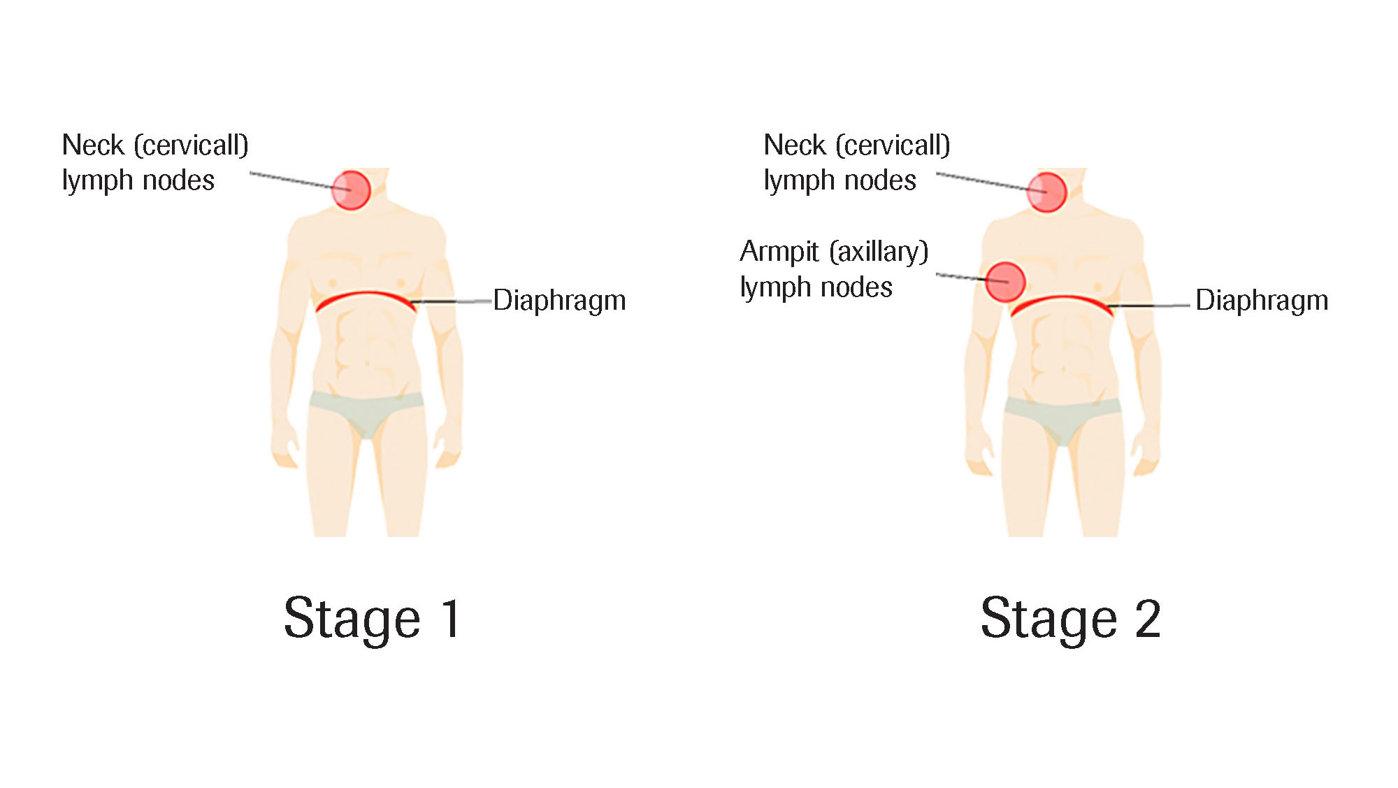 lymphoma stages 1,2