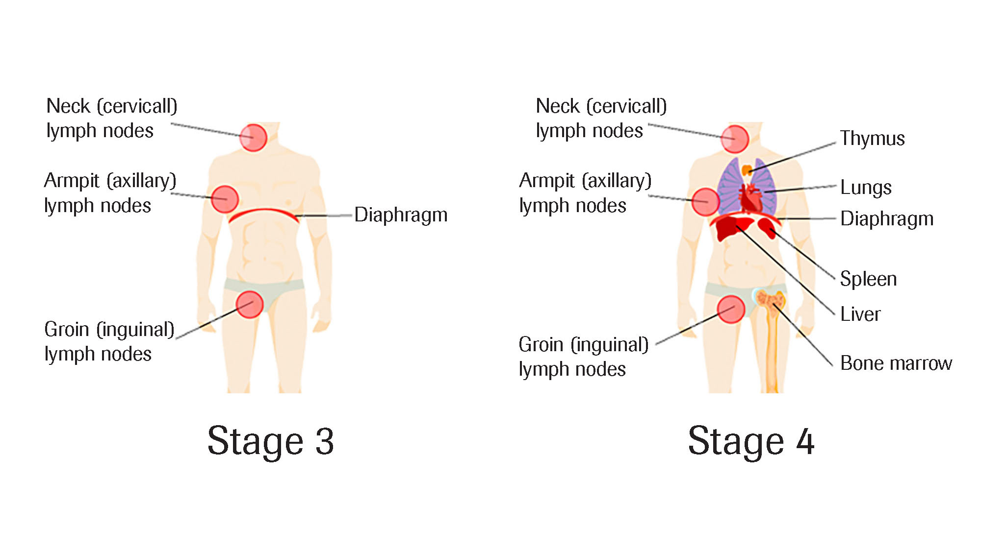 lymphoma stages 3,4